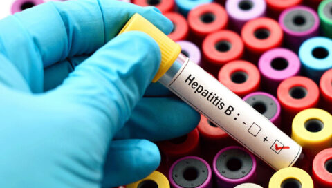Can Patients with Hepatitis Have Hair Transplant