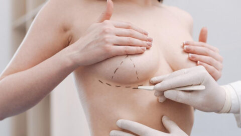 What is main reason for breast lift surgery
